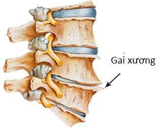 Gai cột sống là sự phát triển thêm ra của xương trên thân đốt sống