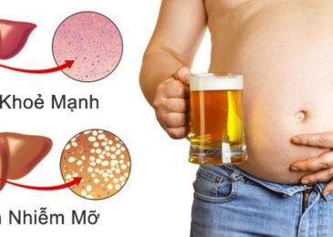 Bệnh Gan nhiễm mỡ là gì, nên ăn uống như thế nào ?