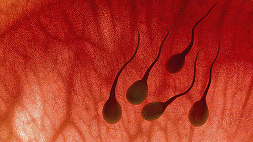 Xuất tinh ra máu (Hemospermia)