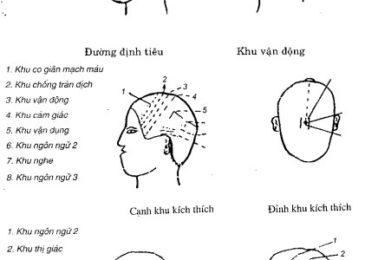 Phương pháp châm đầu (đầu châm) trong châm cứu chữa bệnh