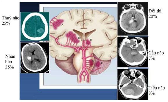Vị trí xuất huyết não thường gặp