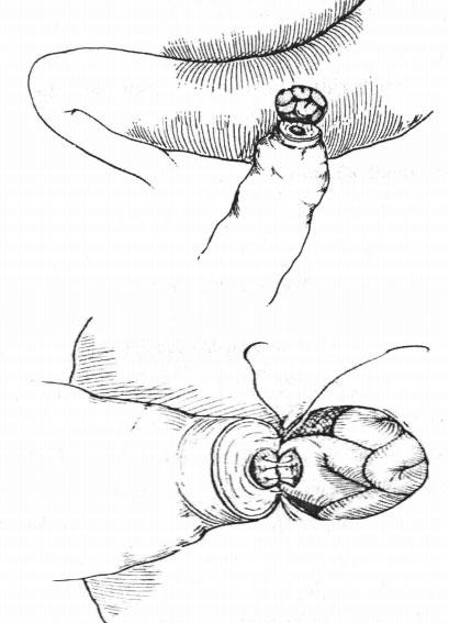 Phẫu thuật lồng mào tinh vào ống dẫn tinh