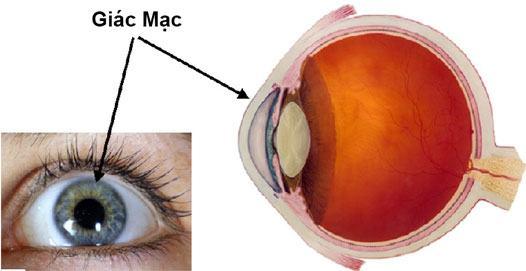 Bệnh nhân viêm giác mạc thường phàn nàn rằng mắt họ bị đỏ và rất đau