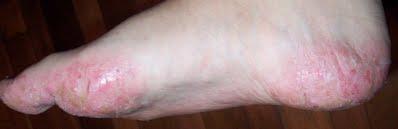 Bệnh Tổ đỉa – Hình ảnh, Biểu hiện và thuốc điều trị