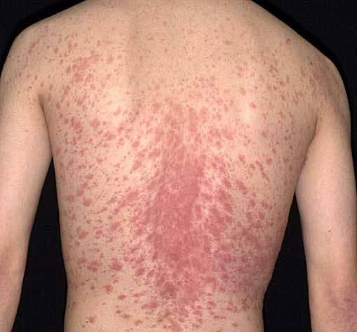 Đỏ da toàn thân do trúng độc thuốc