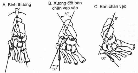 Sự liên kết của xương