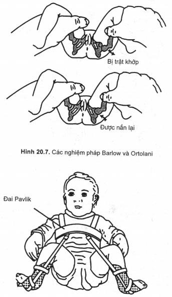 Bộ đai Pavlik trên một trẻ sơ sinh