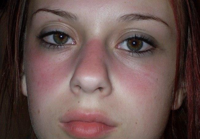 Chẩn đoán và điều trị bệnh Lupus ban đỏ