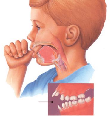 Mút ngón tay cái là hành động tương đối phổ biến ở trẻ nhỏ