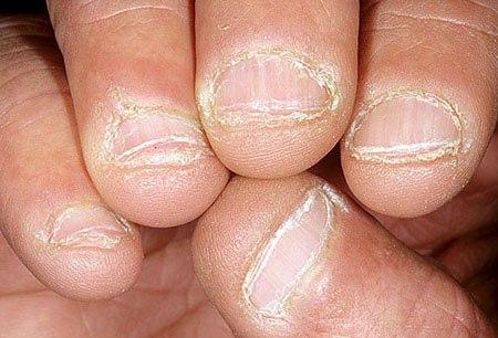 Bệnh Nấm móng – Biểu hiện, hình ảnh và điều trị