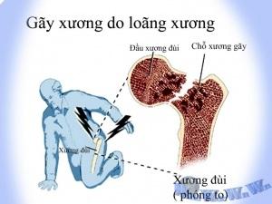 Gãy xương do loãng xương xảy ra như thế nào
