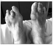 Một số hình ảnh và x quang của bệnh gout