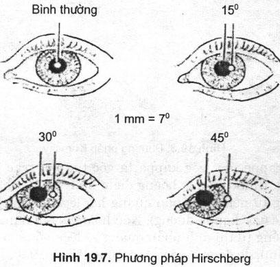 Khám lác mắt – Bệnh thần kinh mắt