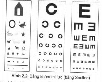 Khám Dây thần kinh thị giác (dây II)