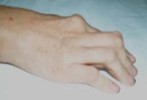 bàn-tay-hình-m
