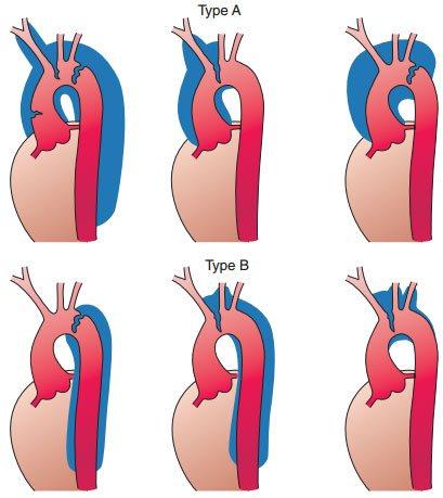 Các Bệnh lý động mạch chủ và điều trị
