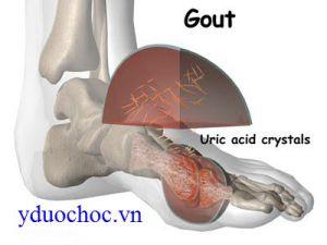 PHÁC ĐỒ ĐIỀU TRỊ VIÊM KHỚP GUT (Gouty Arthritis)