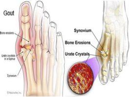 Hình ảnh sưng ngón chân cái trong bệnh gout