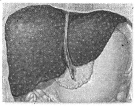 Nguyên nhân và điều trị bệnh xơ gan