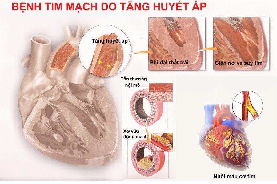 Tăng huyết áp biến chứng tim mạch