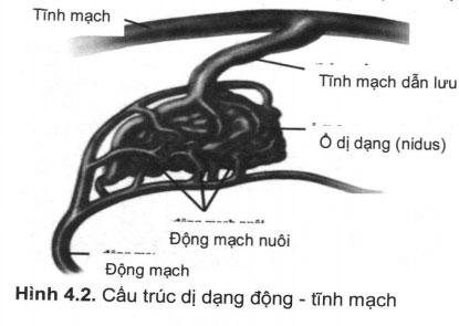 Chẩn đoán và điều trị dị dạng động – tĩnh mạch não
