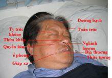 vị trí huyệt điều trị liệt VII ở mặt