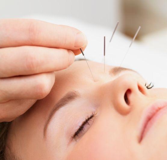 Điều trị hiệu quả bệnh ở mắt bằng phương pháp châm