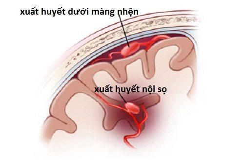 Biến chứng chảy máu não của bệnh Tăng huyết áp?