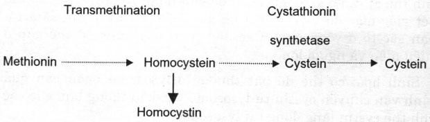 Rối loạn chuyển hóa Acid Amin gây bệnh ở mắt