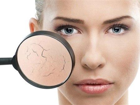 Vết nẻ da do giá rét và phương thuốc điều trị tuyệt diệu