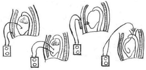 Hình 56. Các phương pháp đặt máy tạo nhịp tim trực tiếp