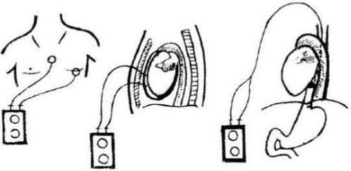 Hội chứng Adams – Stokes – Morgani và phương pháp đặt máy tạo nhịp