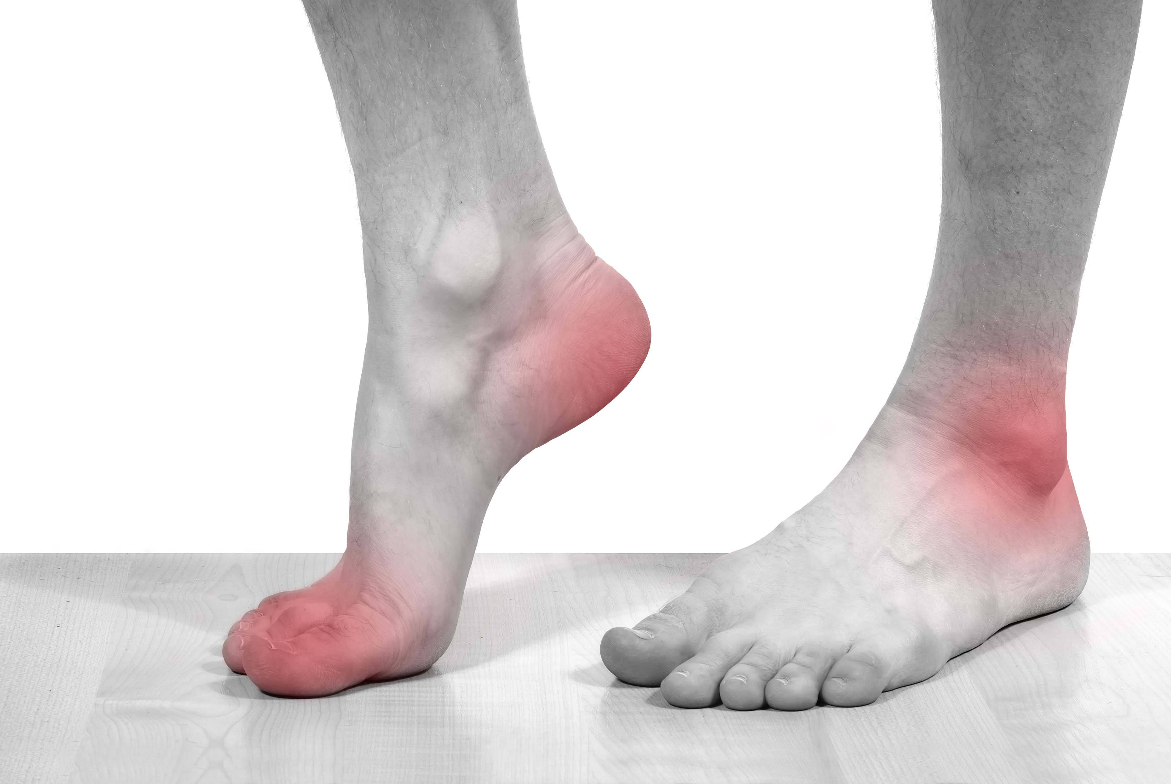 Đau chân – Triệu chứng bệnh gì, phải làm sao