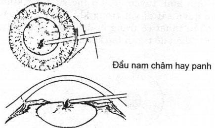 Lấy dị vật nằm trong thể thuỷ tinh bằng nam châm hay bằng panh.