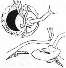 Lấy thể thuỷ tinh trong bao cùng với dị vật