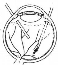 cắt dịch kính để lấy Dị vật nội nhãn