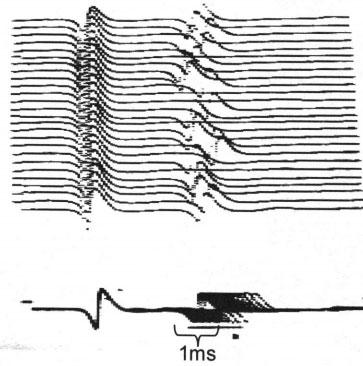 Các kỹ thuật ghi điện cơ đặc biệt