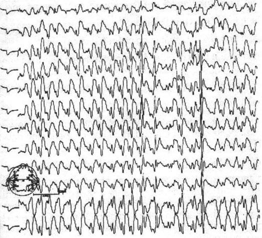 Điện não Động kinh toàn thể