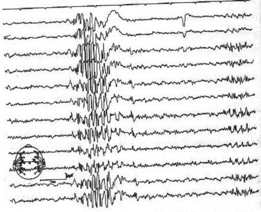 Kịch phát nhọn - sóng ở động kinh cơn toàn thể