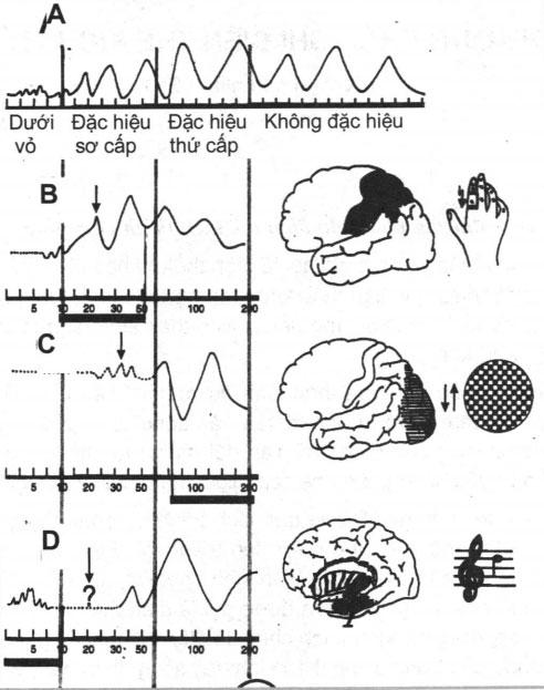 Phương pháp ghi điện thế kích thích trong chẩn đoán thần kinh