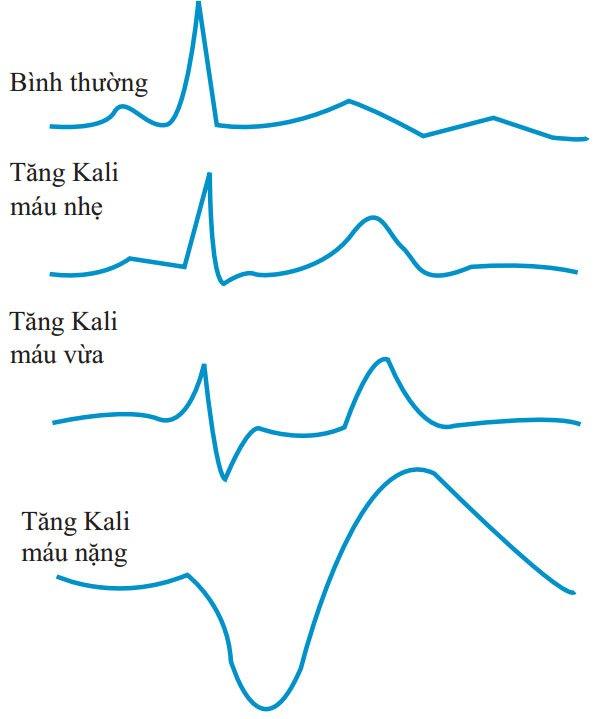 HÌNH 2-4 Điện tâm đồ với Kali bình thường và cao. Sóng T cao, nhọn, sóng R thấp, phức bộ QRS rộng, PR kéo dài, mất sóng P