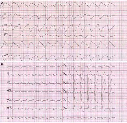 Thay đổi điện tim ở người bệnh tăng kali máu (kali máu >5mmol/l)