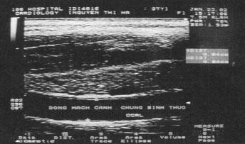 Doppler động mạch não