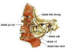 Liệt dây thần kinh số 7 – VII