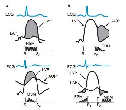 Hình ảnh biểu hiện trên ECG