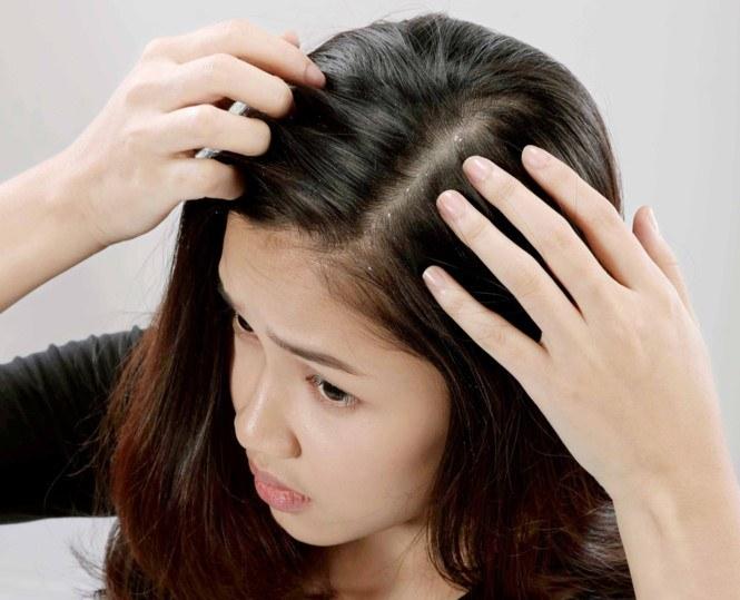 Cách chữa đầu nhiều gầu đơn giản ?