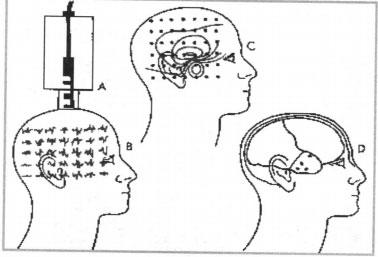 Phương pháp ghi từ não trong chẩn đoán thần kinh