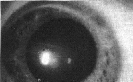 nếp gấp của màng Descemet trong bệnh Glocom