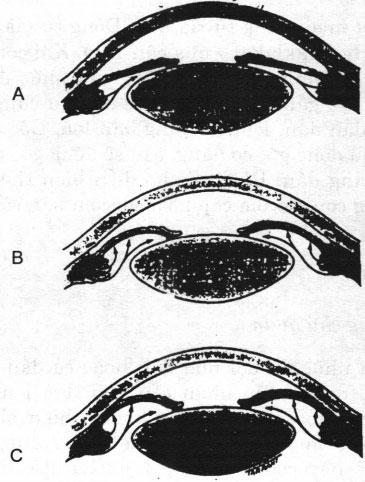 Bệnh Glôcôm góc đóng nguyên phát ở mắt và điều trị