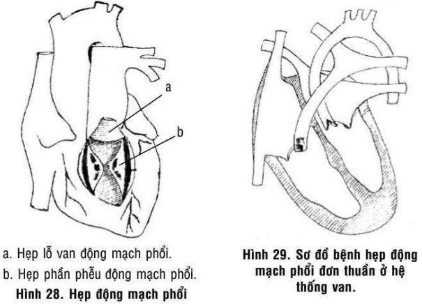 Bệnh hẹp động mạch phổi đơn thuần